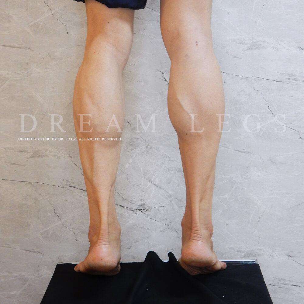 หลังจากทำ Dream Legs ทันที