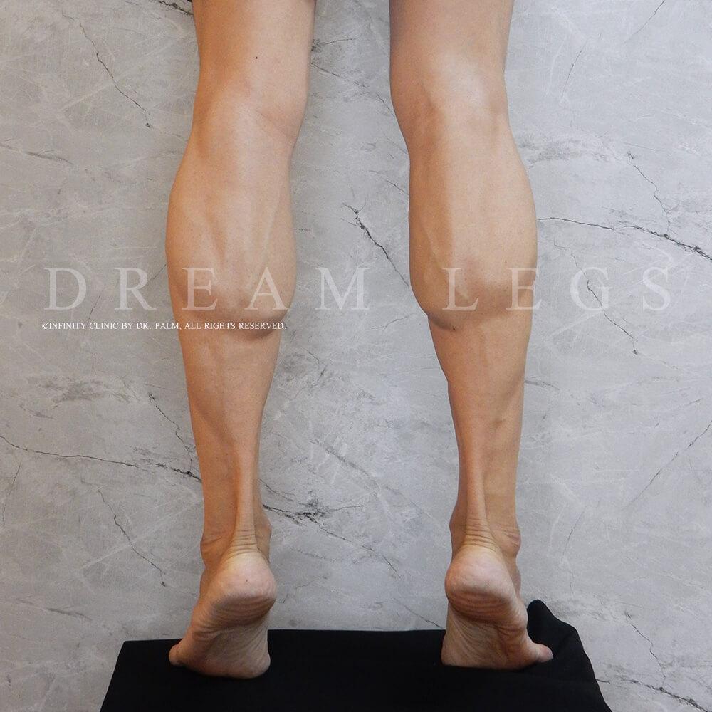 ก่อนทำ Dream Legs